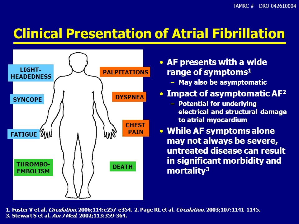Clinical Presentation of Atrial Fibrillation
