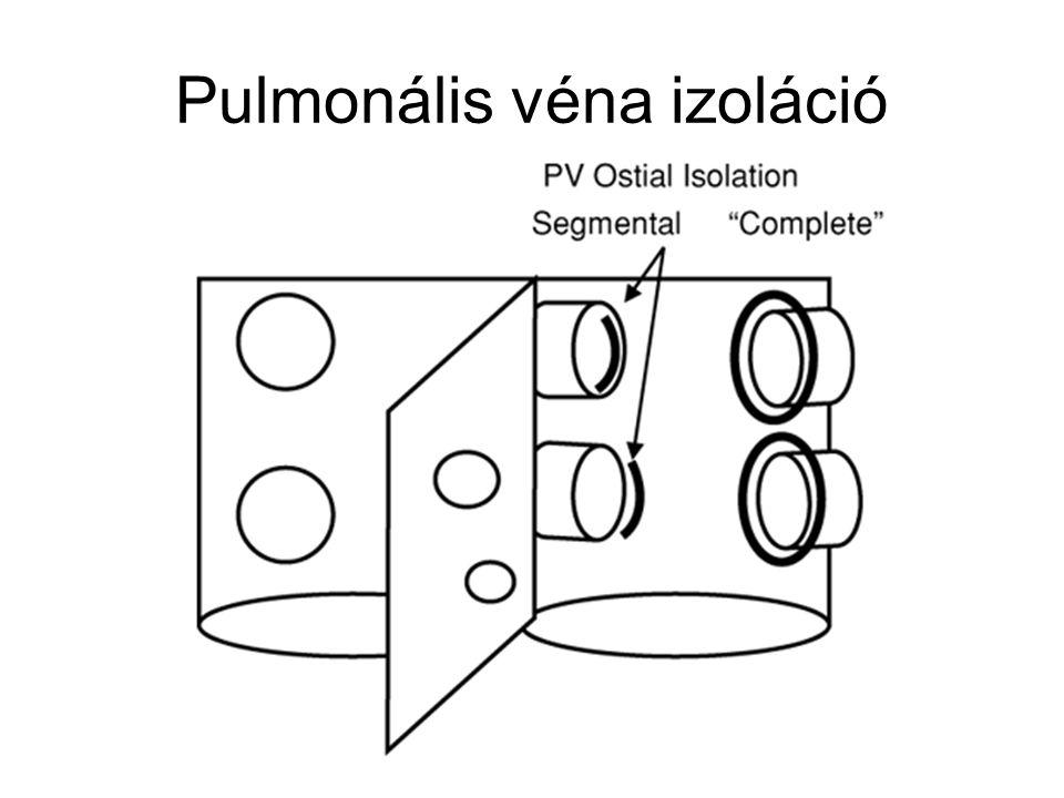 Pulmonális véna izoláció
