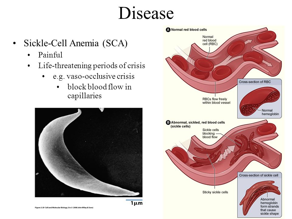 Disease Sickle-Cell Anemia (SCA) Painful