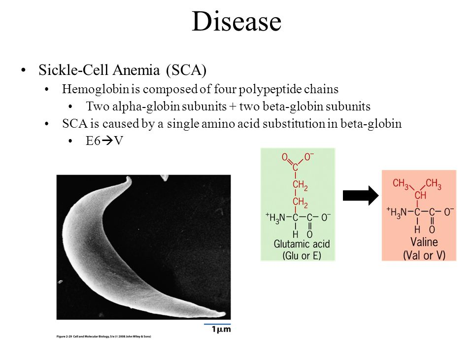 Disease Sickle-Cell Anemia (SCA)