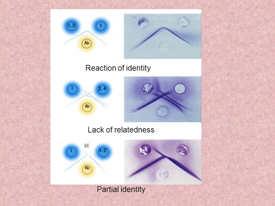 Reaction of identity Lack of relatedness Partial identity