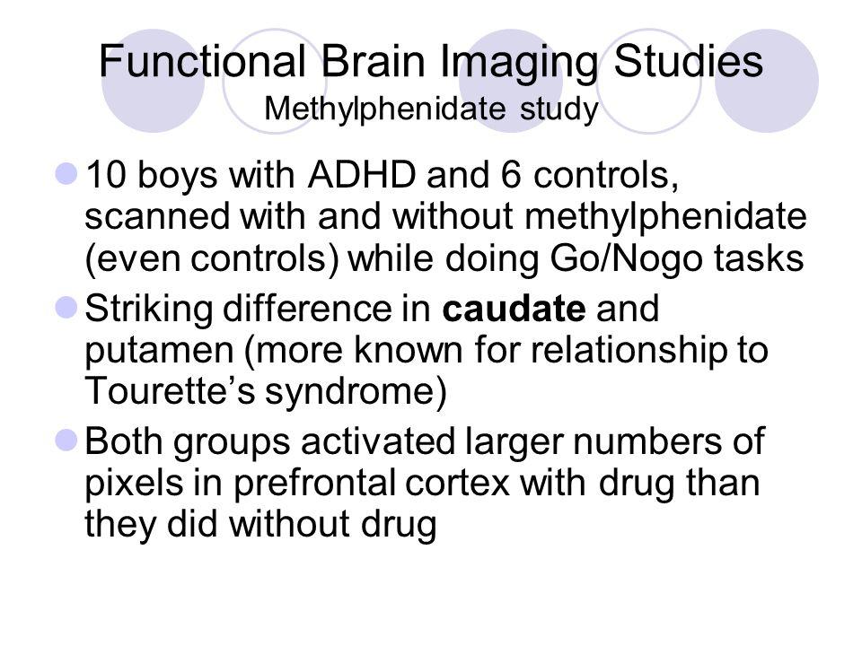 Functional Brain Imaging Studies Methylphenidate study