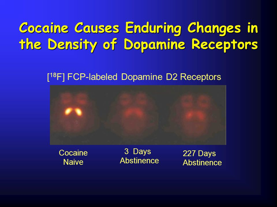 Cocaine Causes Enduring Changes in the Density of Dopamine Receptors