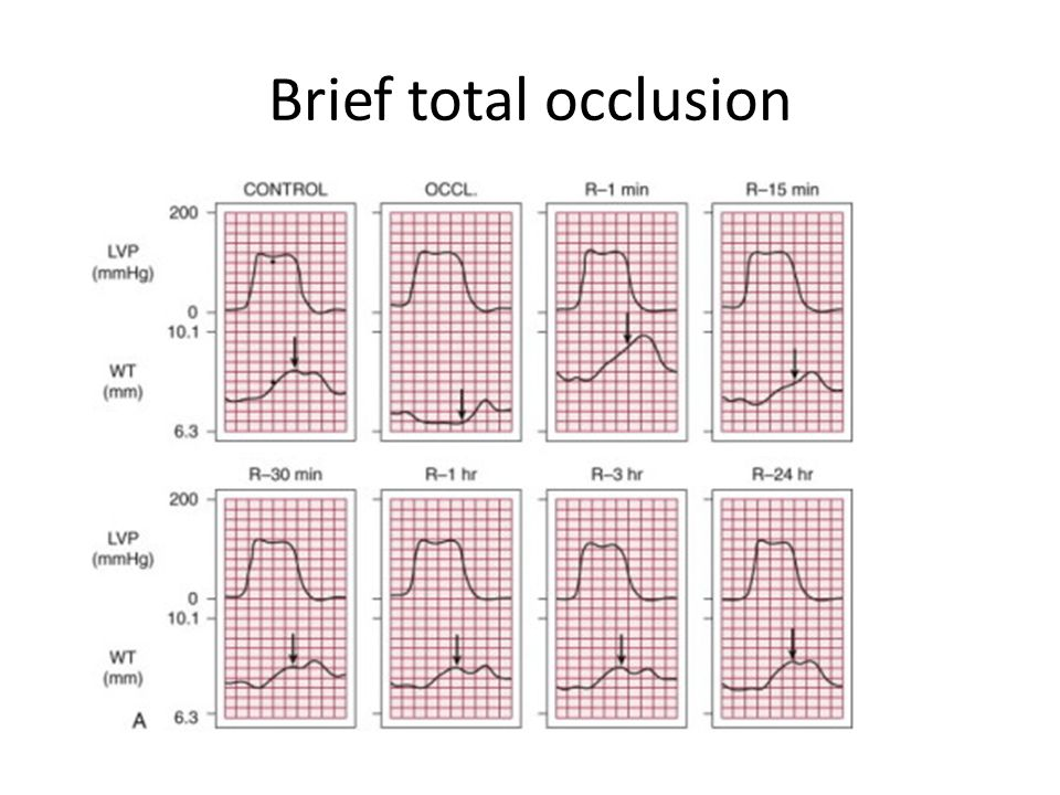 Brief total occlusion