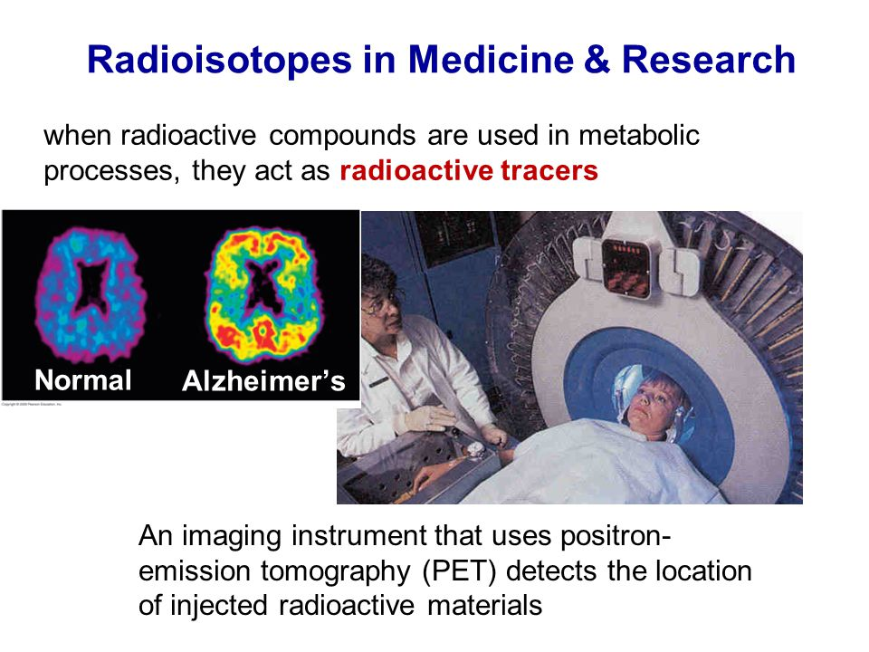 Radioisotopes in Medicine & Research