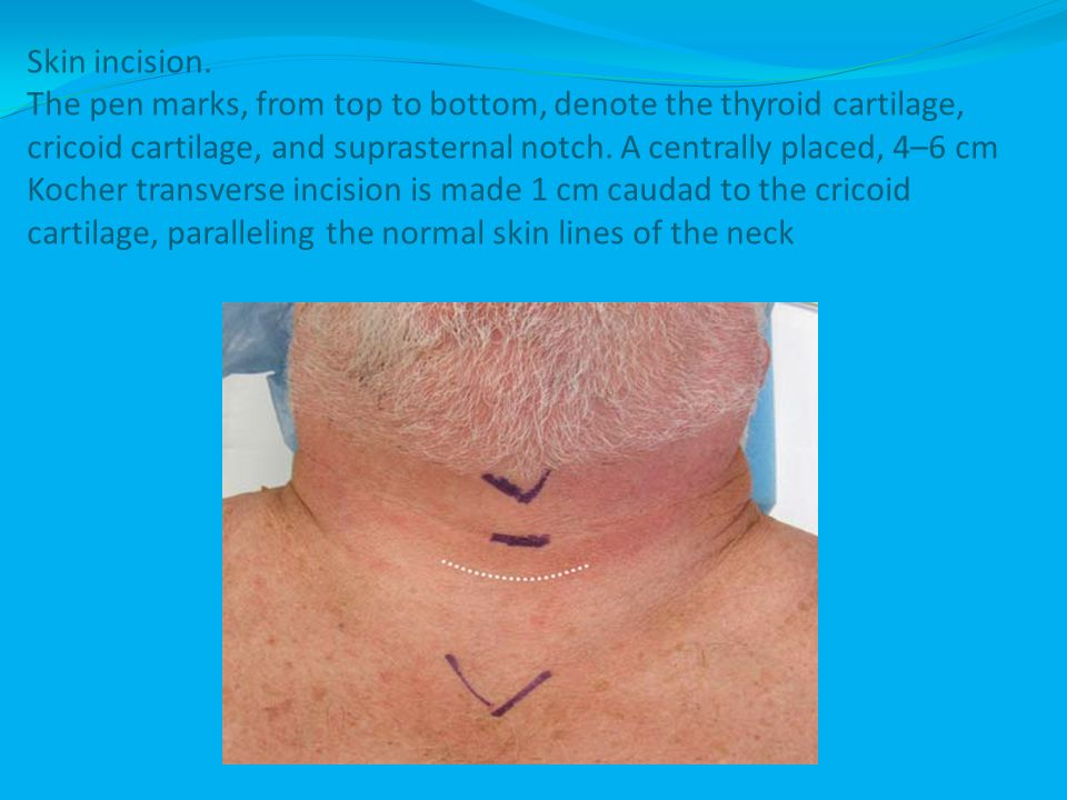 Skin incision.
