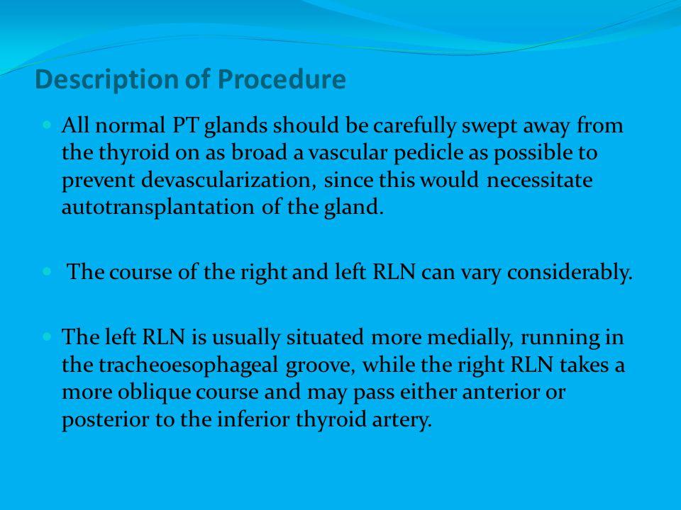 Description of Procedure