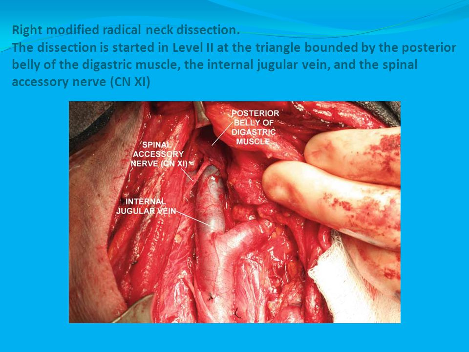 Right modified radical neck dissection