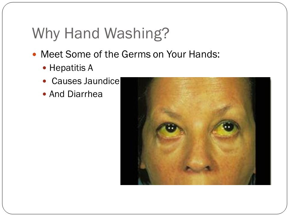 Why Hand Washing Meet Some of the Germs on Your Hands: Hepatitis A