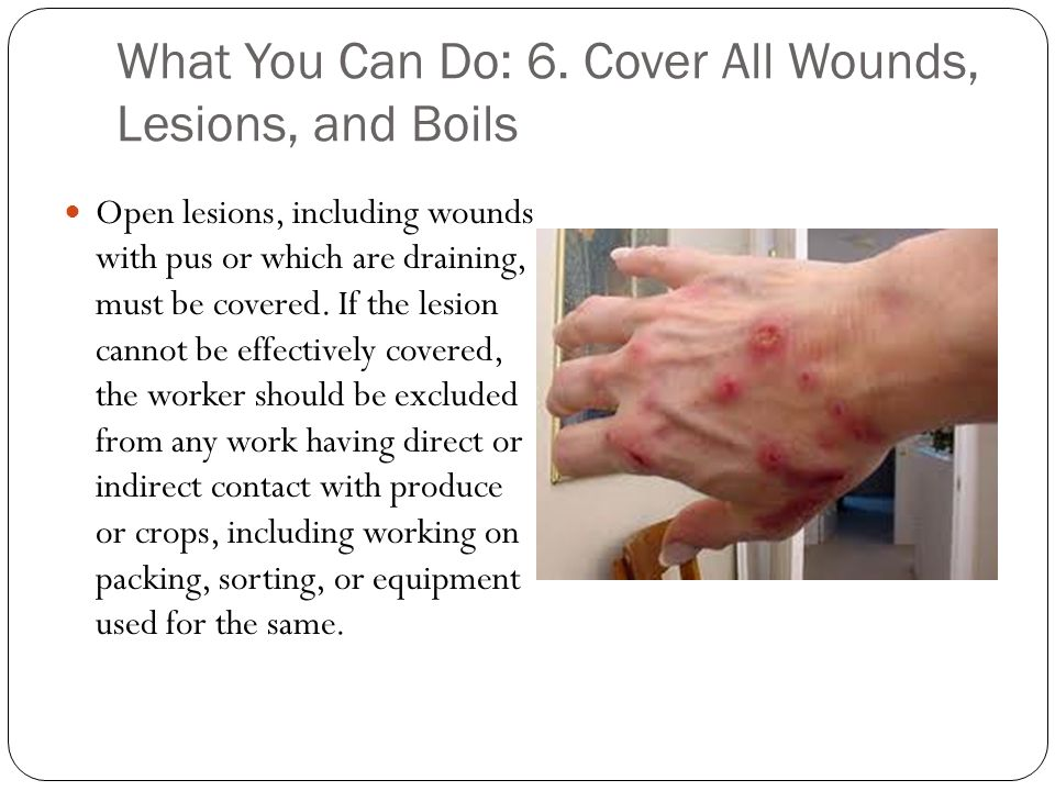 What You Can Do: 6. Cover All Wounds, Lesions, and Boils