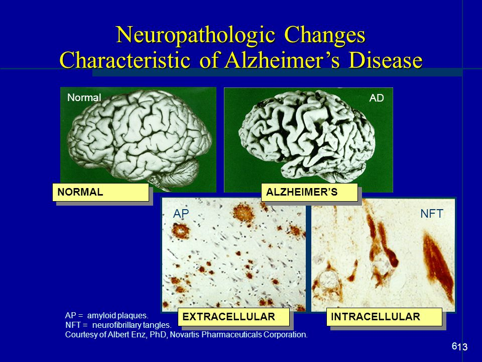 Neuropathologic Changes Characteristic of Alzheimer's Disease