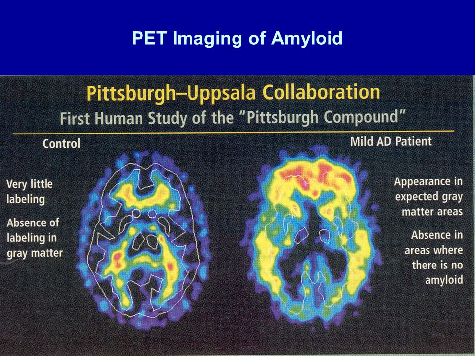PET Imaging of Amyloid