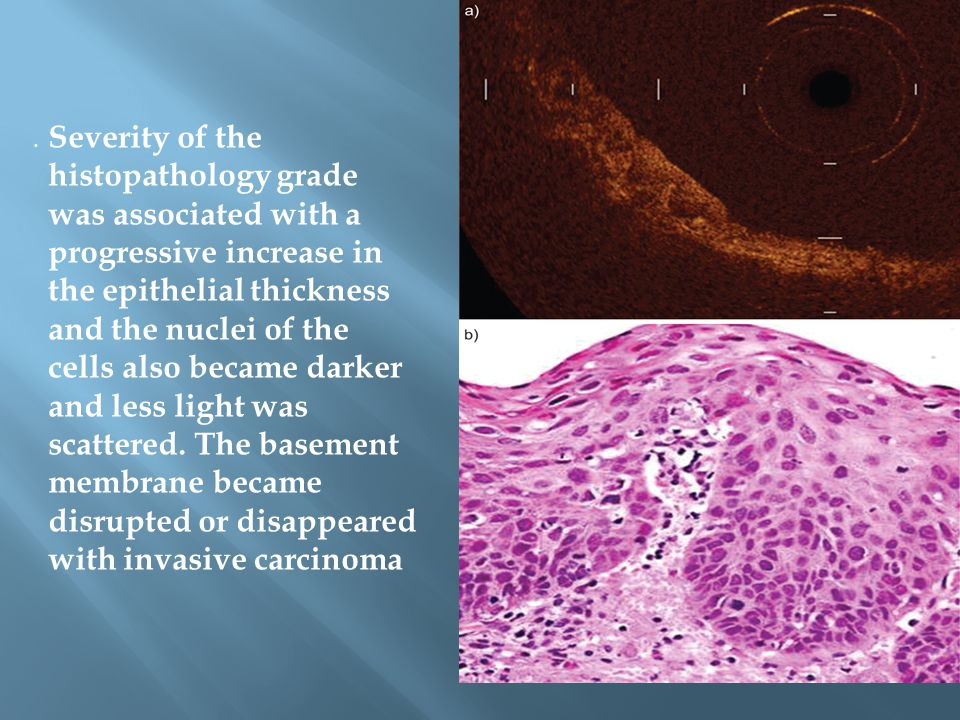 Severity of the histopathology grade was associated with a progressive increase in the epithelial thickness and the nuclei of the cells also became darker and less light was scattered. The basement membrane became disrupted or disappeared with invasive carcinoma