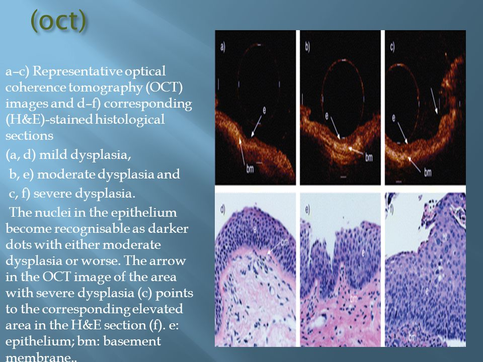 (oct) a–c) Representative optical coherence tomography (OCT) images and d–f) corresponding (H&E)-stained histological sections.