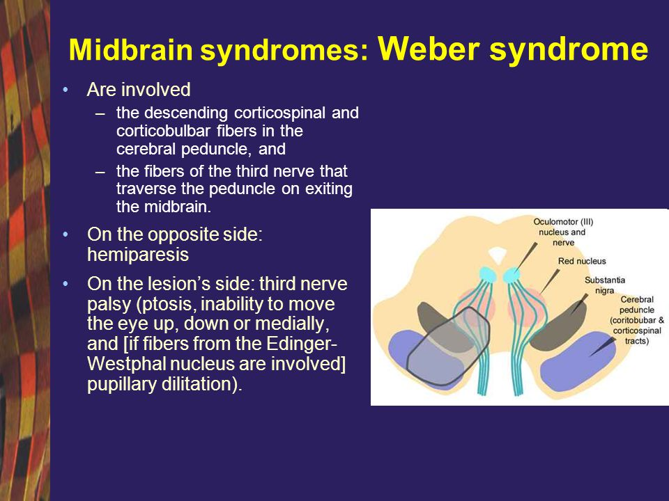 Midbrain syndromes: Weber syndrome