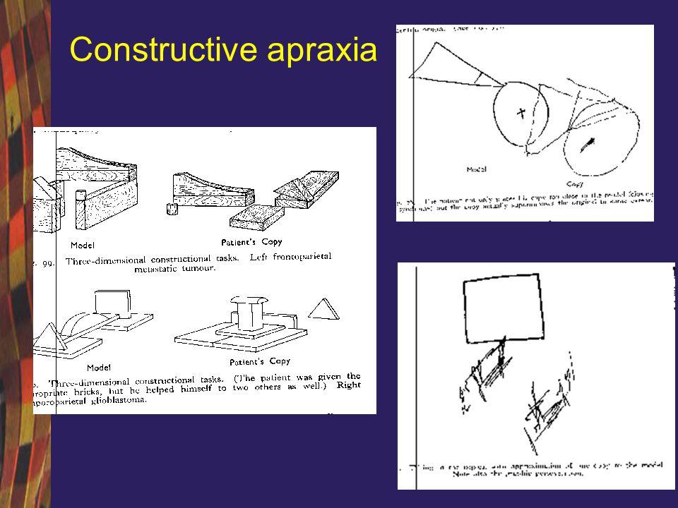 Constructive apraxia