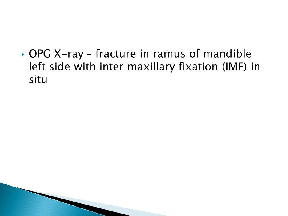 OPG X-ray – fracture in ramus of mandible left side with inter maxillary fixation (IMF) in situ