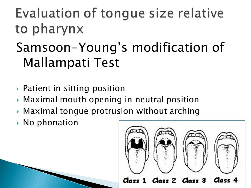 Evaluation of tongue size relative to pharynx