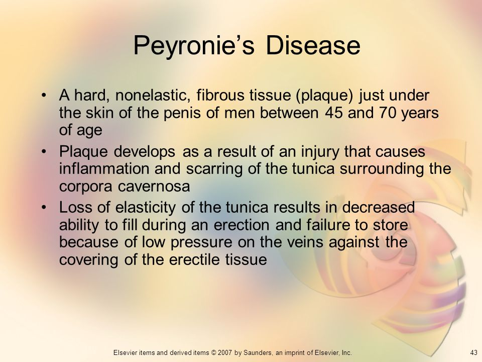 Peyronie's Disease A hard, nonelastic, fibrous tissue (plaque) just under the skin of the penis of men between 45 and 70 years of age.