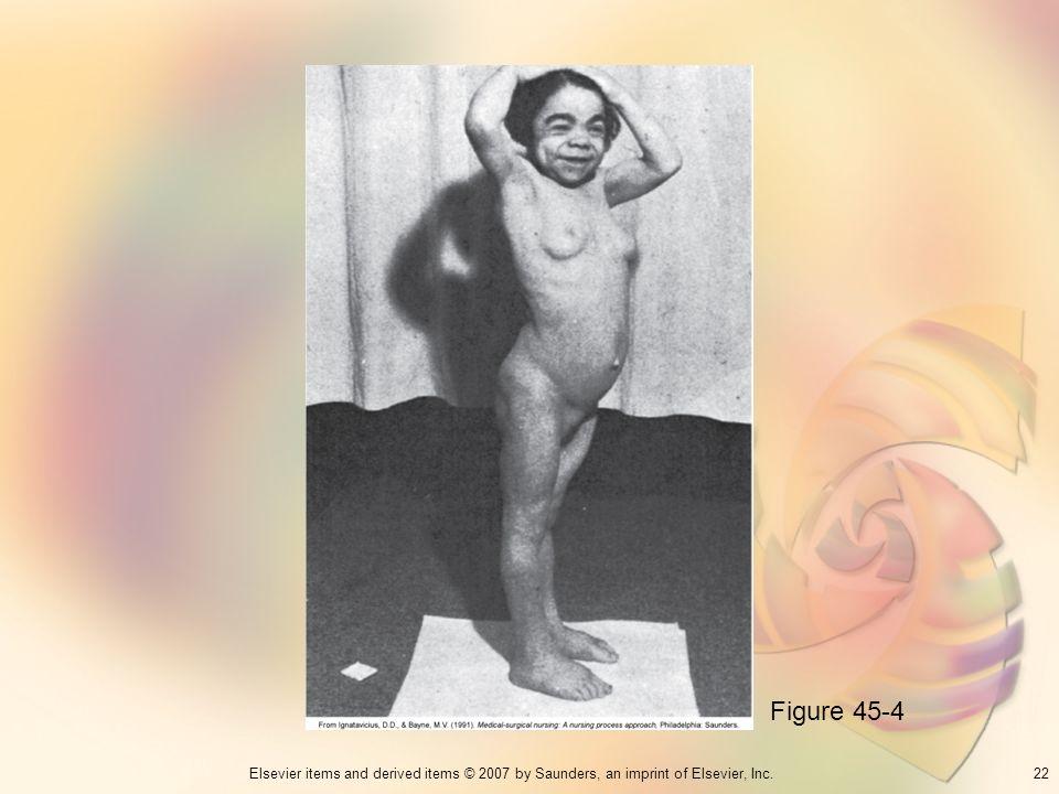 Figure 45-4 22