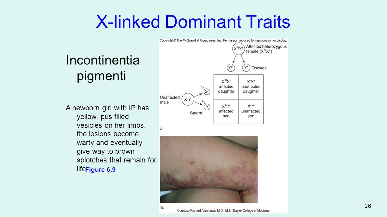 X-linked Dominant Traits