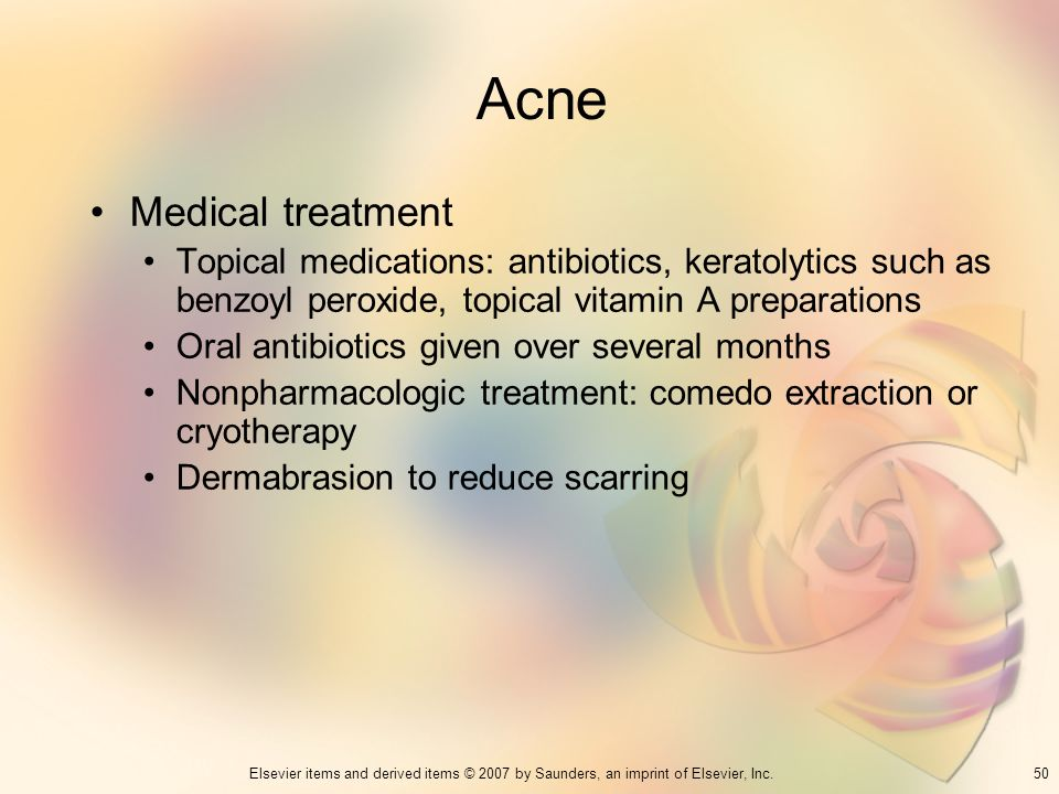 Acne Medical treatment