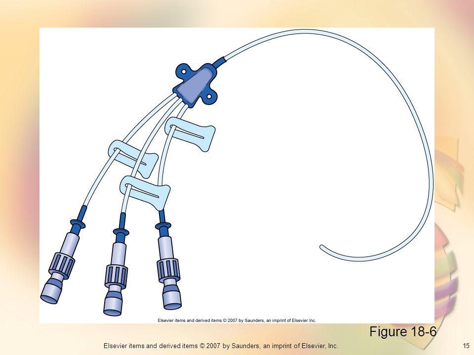 Figure 18-6