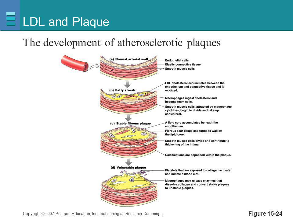 LDL and Plaque The development of atherosclerotic plaques Figure 15-24