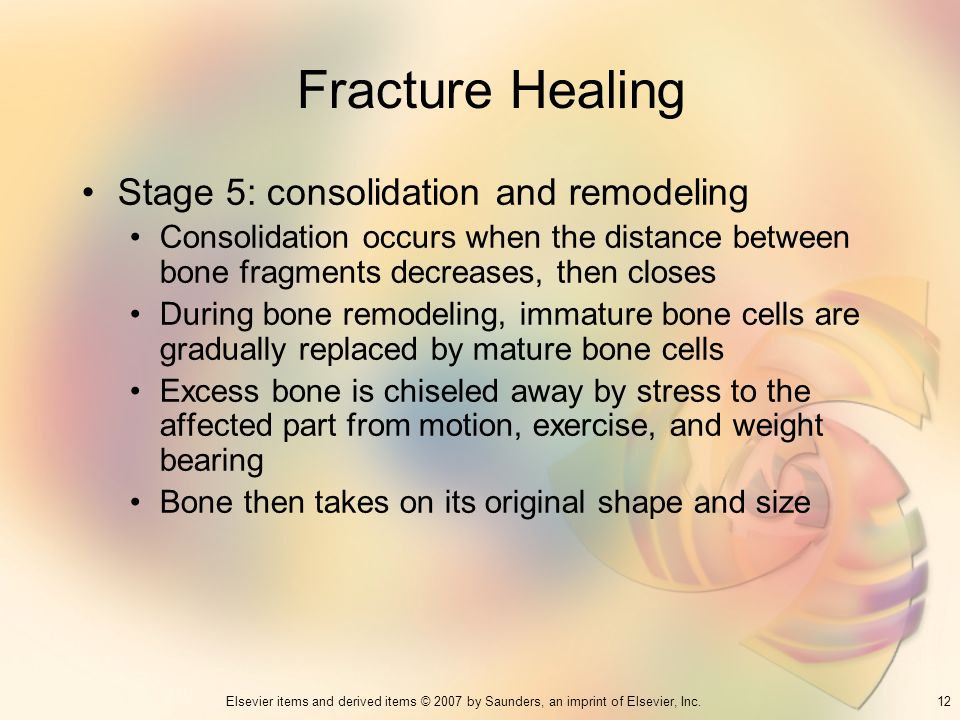 Fracture Healing Stage 5: consolidation and remodeling