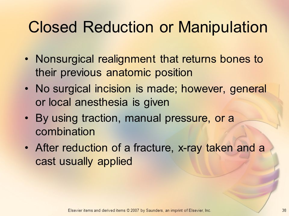 Closed Reduction or Manipulation
