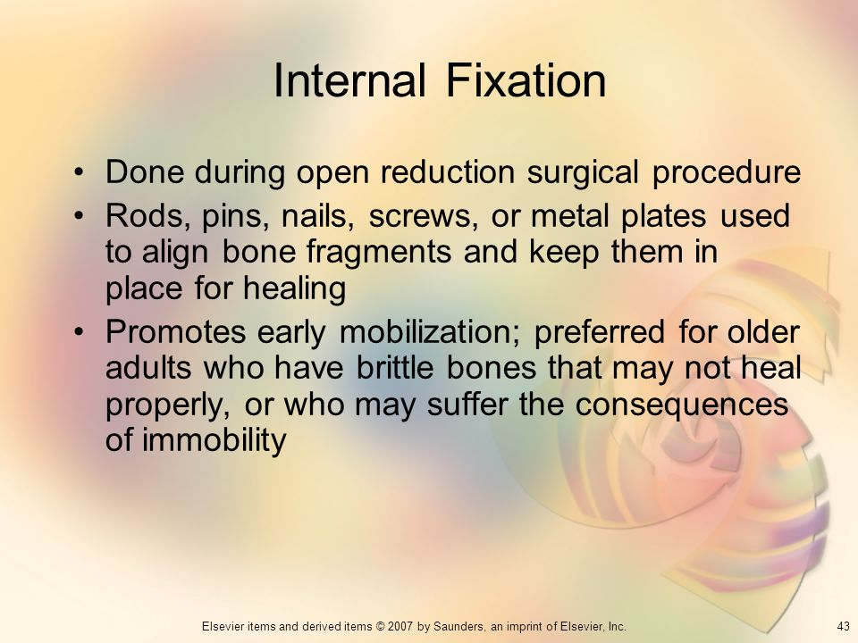 Internal Fixation Done during open reduction surgical procedure