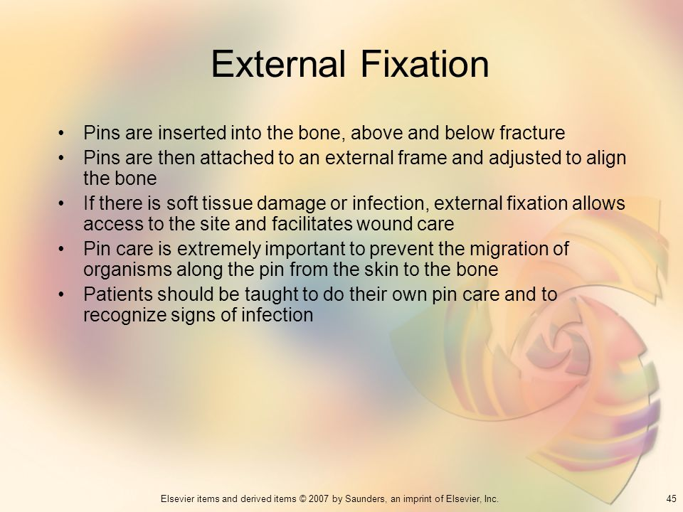 External Fixation Pins are inserted into the bone, above and below fracture.