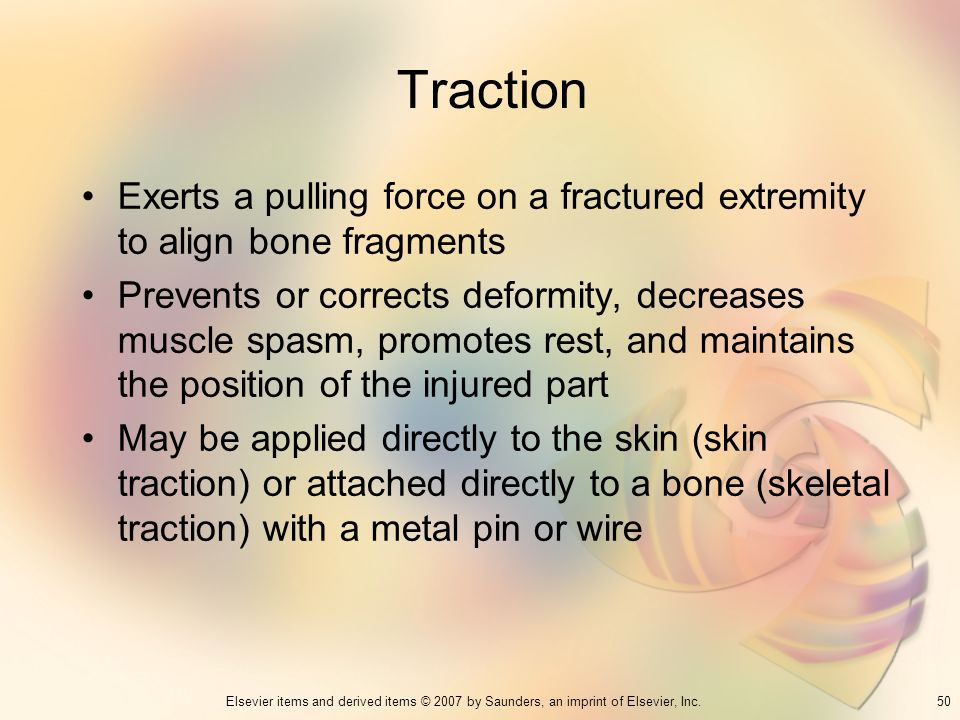 Traction Exerts a pulling force on a fractured extremity to align bone fragments.