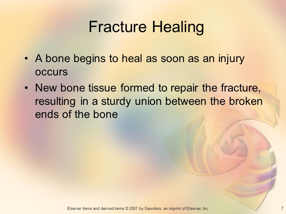 Fracture Healing A bone begins to heal as soon as an injury occurs