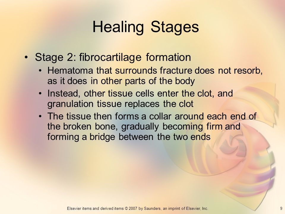 Healing Stages Stage 2: fibrocartilage formation