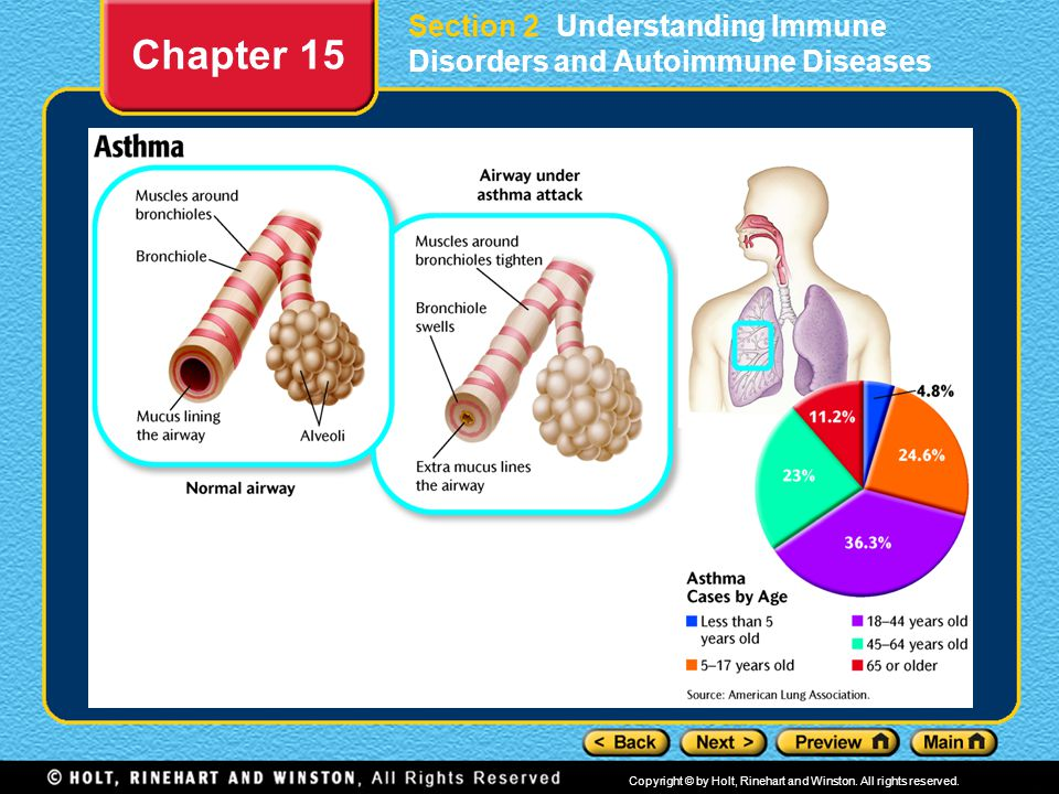 Section 2 Understanding Immune Disorders and Autoimmune Diseases