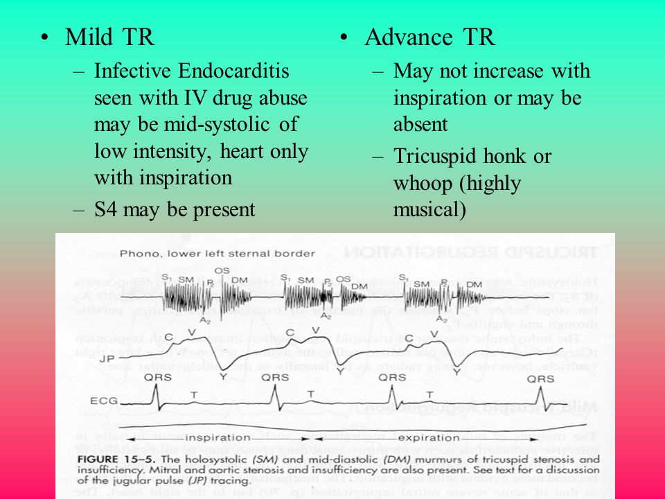 Mild TR Infective Endocarditis seen with IV drug abuse may be mid-systolic of low intensity, heart only with inspiration.