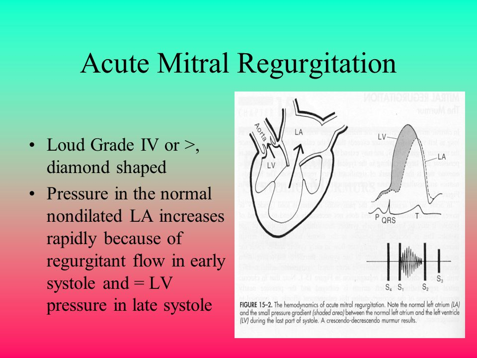 Acute Mitral Regurgitation