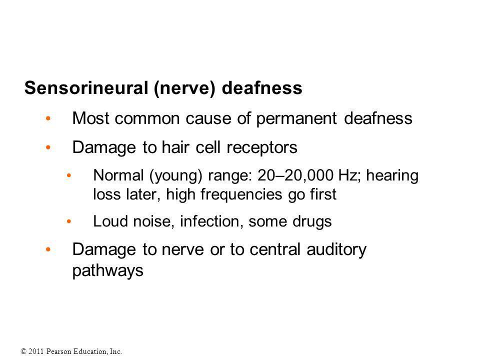 Sensorineural (nerve) deafness