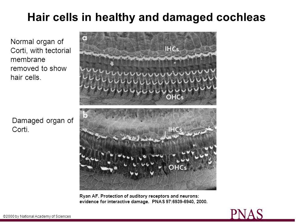 Hair cells in healthy and damaged cochleas