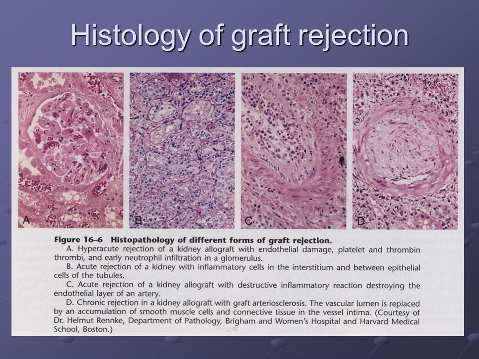 Histology of graft rejection