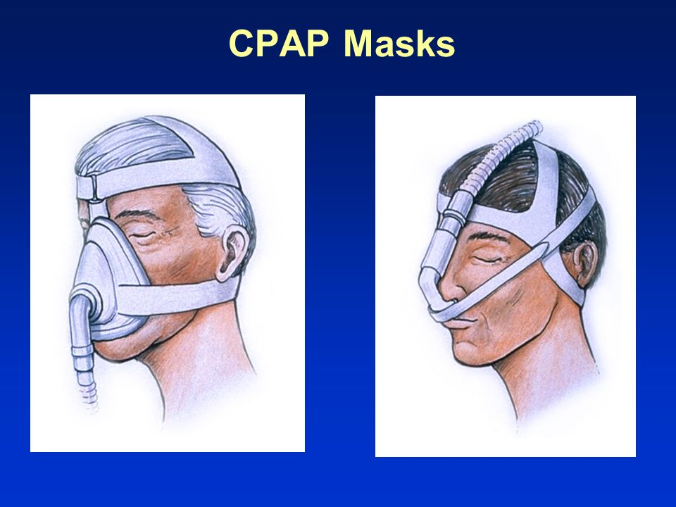 CPAP Masks Slide 113. Level 2.