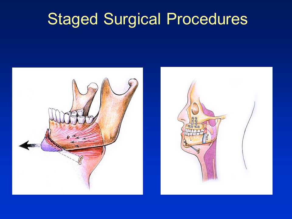 Staged Surgical Procedures