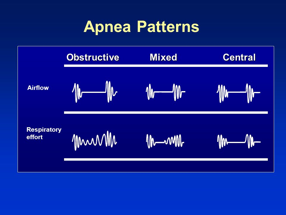 Apnea Patterns Obstructive Mixed Central Airflow Respiratory effort