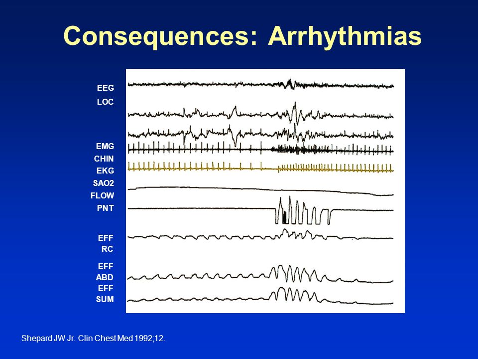 Consequences: Arrhythmias
