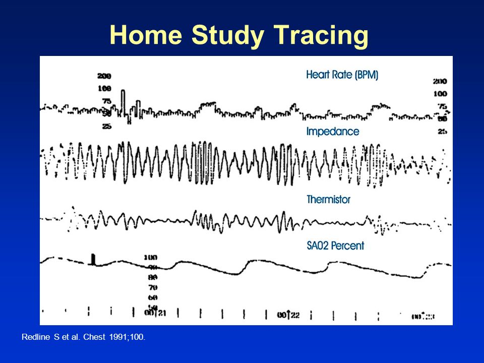 Home Study Tracing Slide 85 Level 2 Redline S et al. Chest 1991;100.