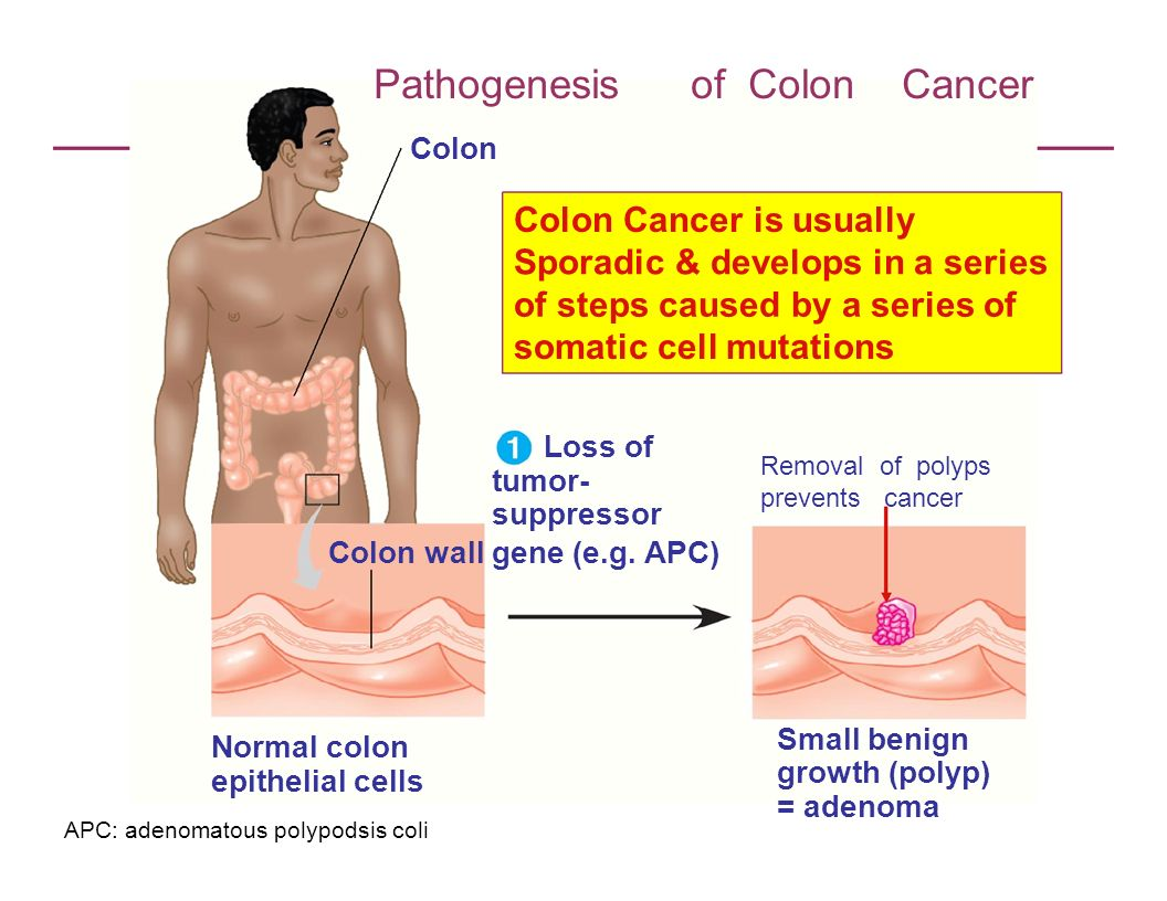 Pathogenesis of Colon Cancer