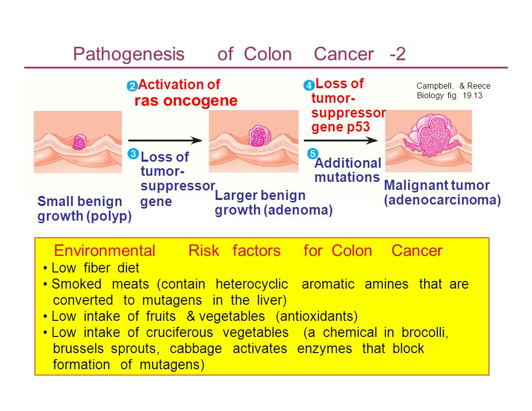Pathogenesis of Colon Cancer -2