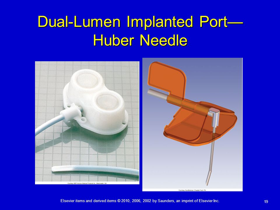 Dual-Lumen Implanted Port—Huber Needle