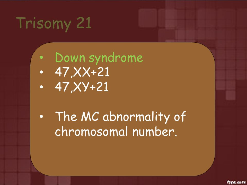 Trisomy 21 Down syndrome 47,XX+21 47,XY+21